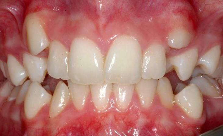 کجی دندانها