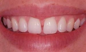 فاصله بین دندانهای جلو یی
