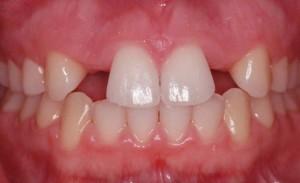 غیبت دندان