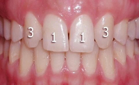 دندان های غایب