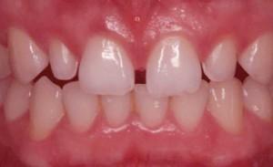 فاصله بین دندان ها