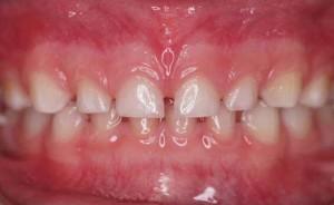 فاصله بین دندانها ی شیری