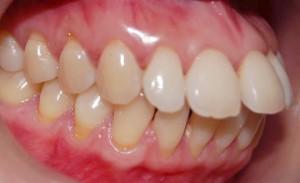 جلو بودن دندانها