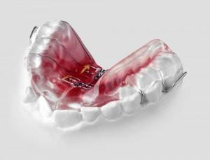 پلاک متحرک ارتودنسی دندان - افزایش عرض فک