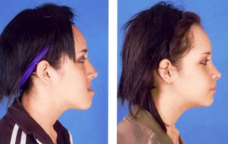ناهنجاری فک و صورت